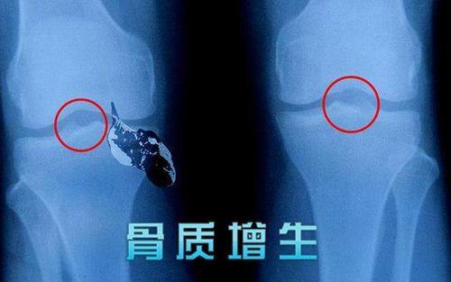 骨质增生有什么症状?有这几个表现得留意了